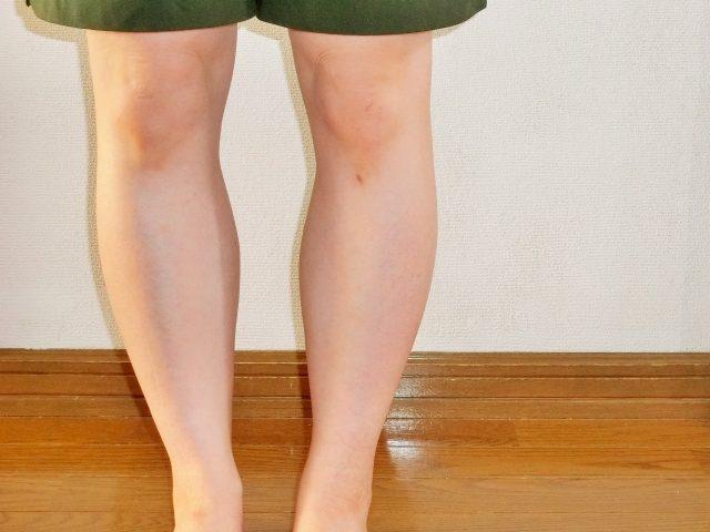 ほっておくと恐いO脚!O脚の原因と改善法!