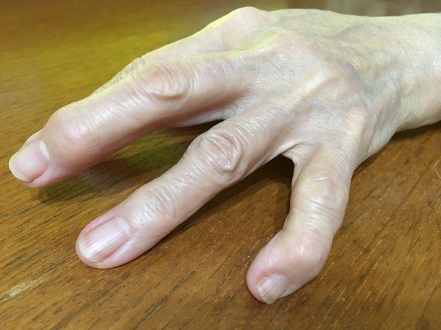関節の腫れ!指に力が入らない!ヘバーデン結節とは?原因と治療法