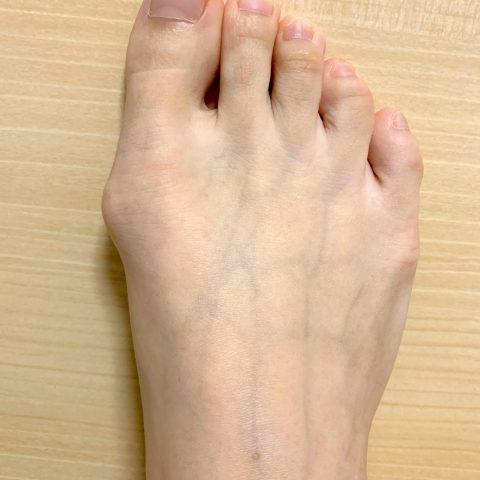 歩くと足の親指が痛い!!つらい外反母趾の原因と治療法!